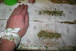 русская народная медицина